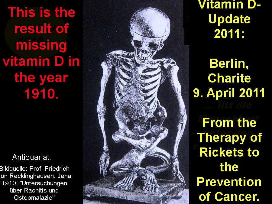 You are browsing images from: Congress on Vitamin D